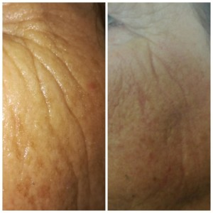plasma tightening before and after